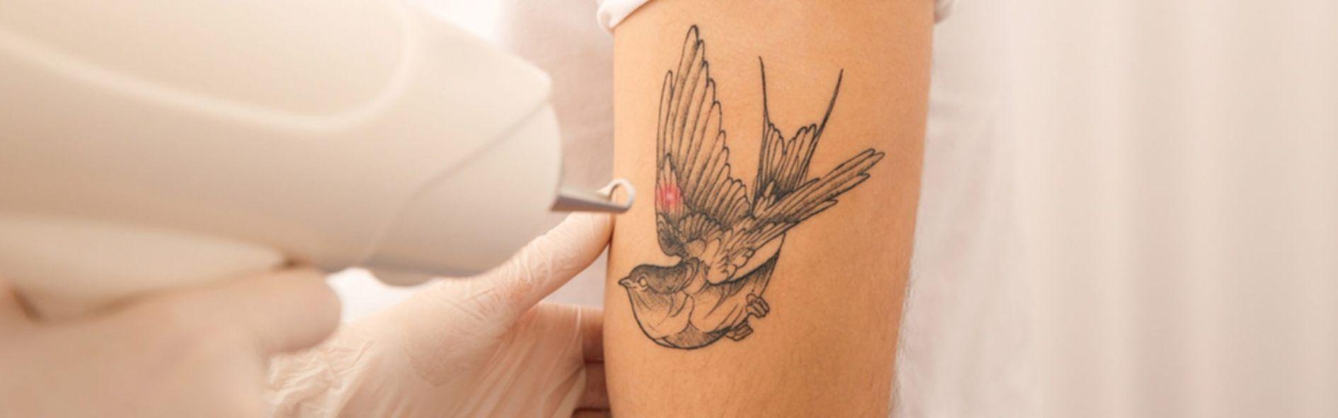 Descubre la eliminación de tatuajes y todo lo que debes tener en cuenta antes del proceso